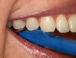 tooth crack test stick-Lorne Park Dental-Lakeshore Dentist-Mississauga