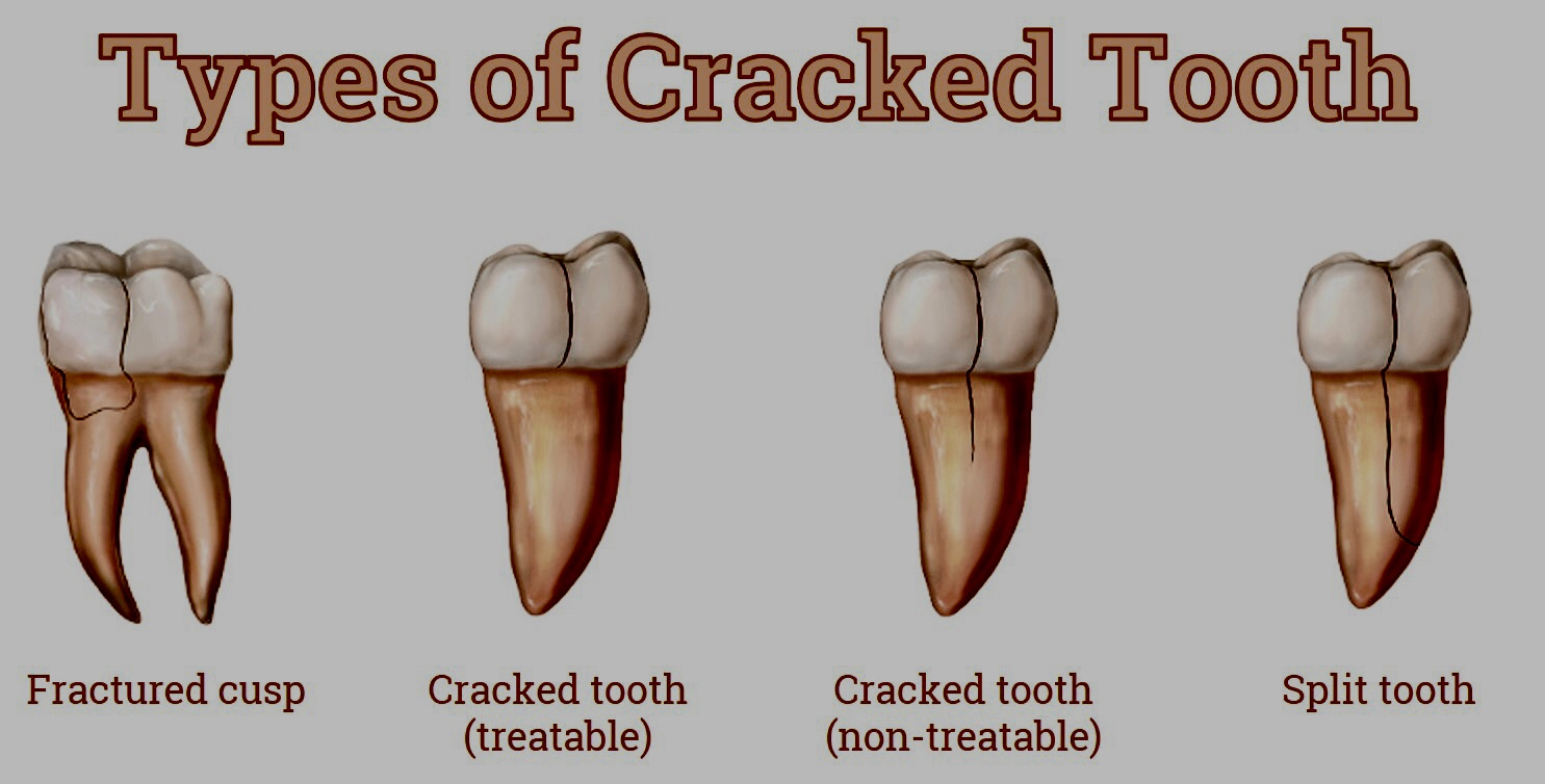 cracked tooth types-Lorne Park Dental-Mississauga-Lakeshore Dentist