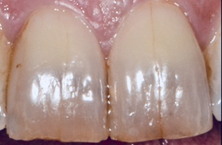 craze lines in front teeth-Lorne Park Dental-Mississauga-Lakeshore Dentist